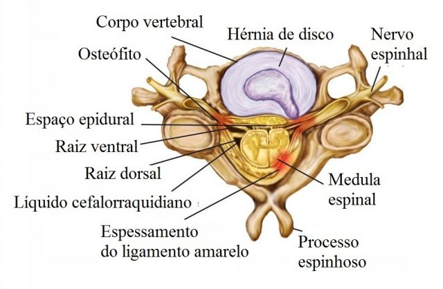 Hérnia,cervical,mediana,posterior