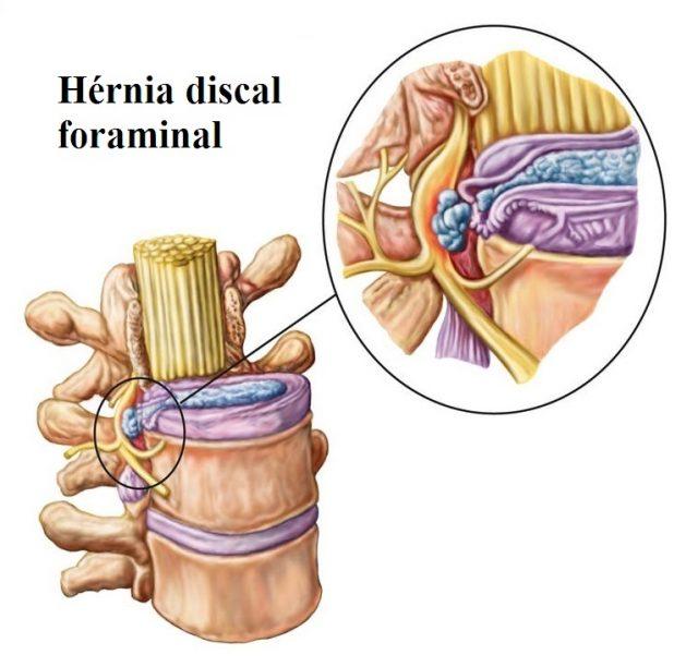 Hérnia,de,disco,foraminal