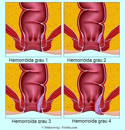 Hemorróidas externas e internas