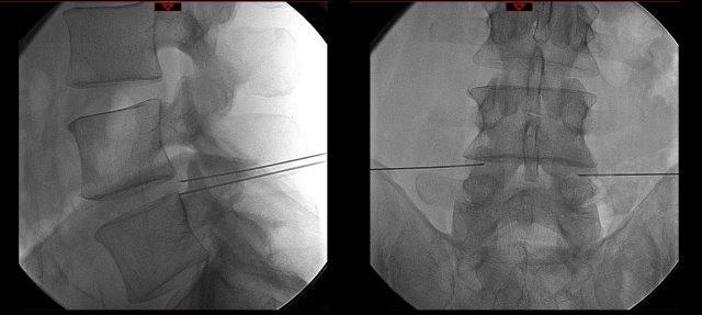 Infiltrações lombares,L4-L5, fluoroscopia