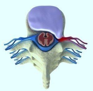 Anatomia do disco inter-vertebral, potusão paramediana, esquerda, comprime a raiz do nervo, vértebras, medula espinhal, nervo, núcleo pulposo, ânulo fibroso, deslocamento, irritação, inflamação.