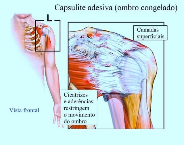 capsulite,adesiva