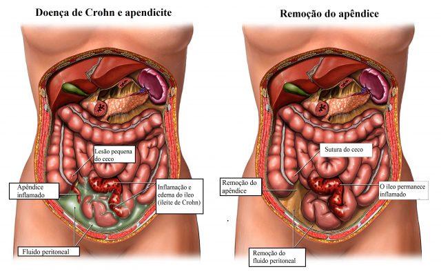 cirurgia,para,doença,de,Crohn