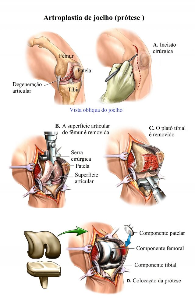 cirurgia,prótese,do,joelho