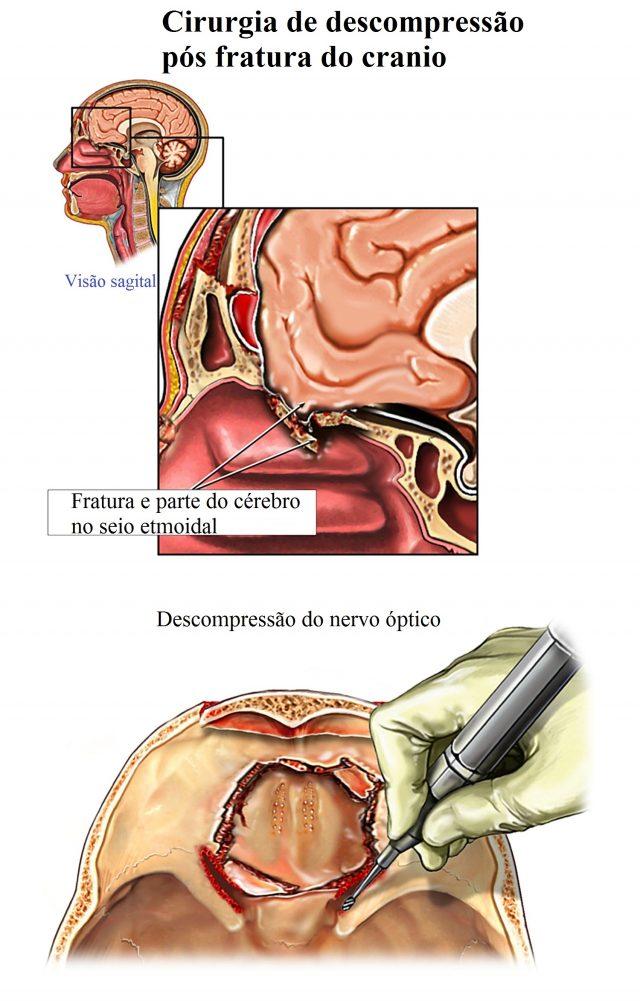 descompressão,nervo,óptico