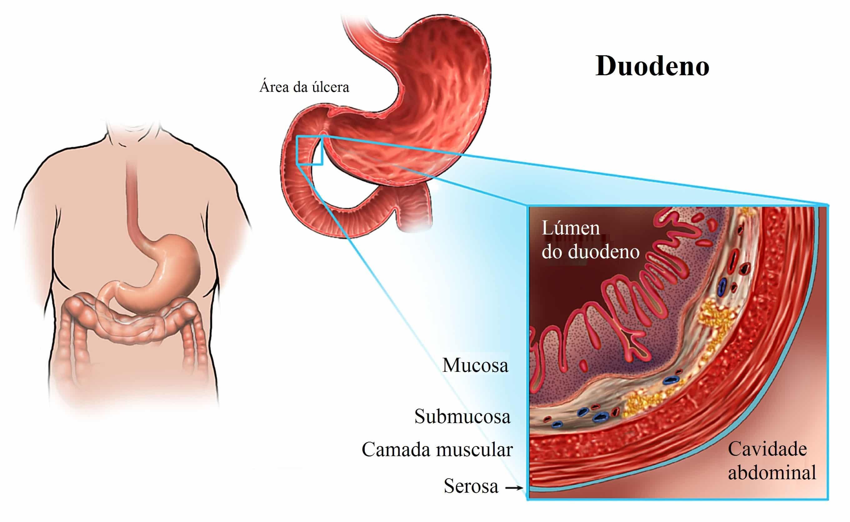 cólicas estomacais desaparecem depois de comer