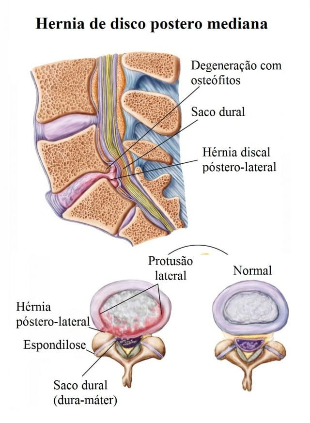Hérnia de disco na coluna lombar, expulsa, central ou foraminal