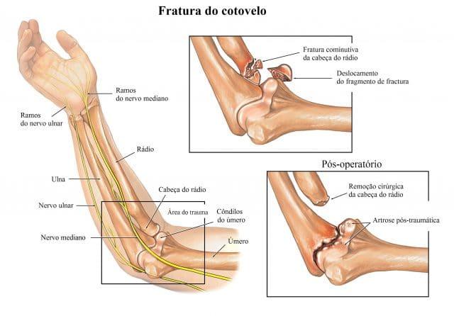 nervo,ulnar,mediano,fractura,do,cotovelo