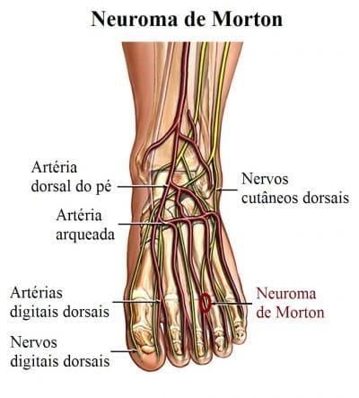 Nervos mão da esquerda dor nos perna da