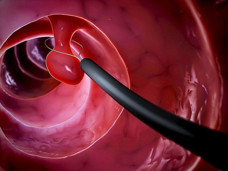 Procedimento para fazer exame de colonoscopia