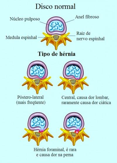 Hérnia de disco,pòstero-lateral,foraminal,central,dor lombar,ciàtica