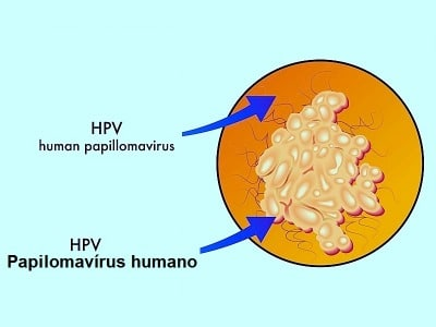 Papiloma vírus