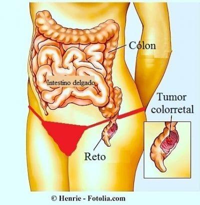 Sintomas da obstrução intestinal