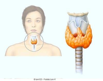 Sintomas do hipotireoidismo