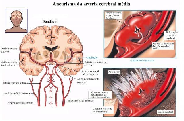 aneurisma,cerebral,edema,dor,de,cabeça