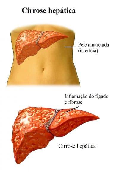 cirrose,hepática
