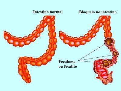 fecaloma,obstrução intestinal, oclusão, prisão de ventre, constipação,impactação fecal