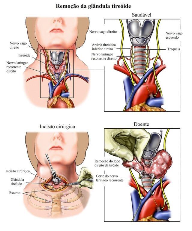 remoção,da,glândula,tiróide