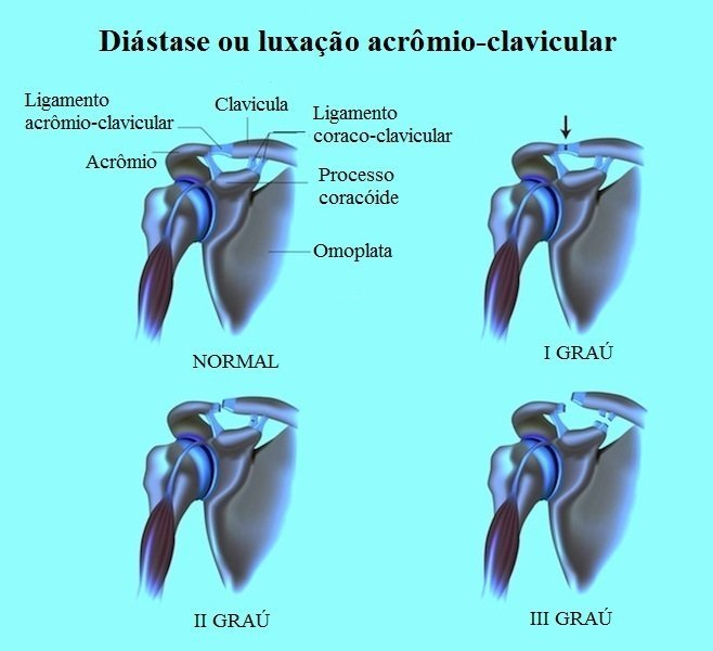 Luxação Acrômio-clavicular, deslocamento, separação, acrômio, clavícula, ombro