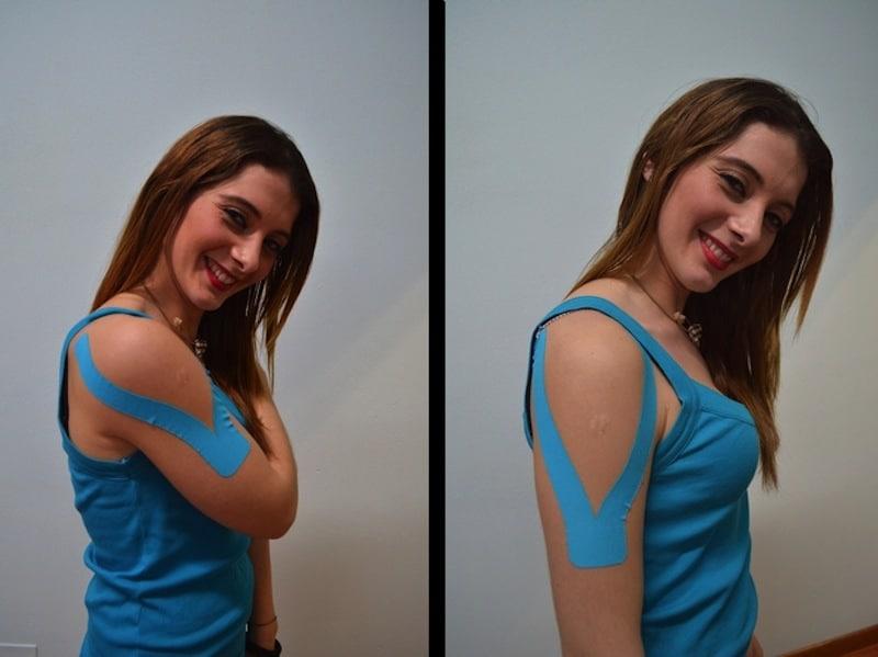 taping kinesio, instabilidade, luxação do ombro, sai, úmero Kinesio -Taping para instabilidade do ombro