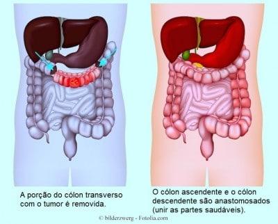 Cirurgia,ressecção,câncer de cólon,remoção,anastomose,retirada