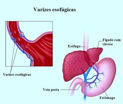 Varizes esofágicas