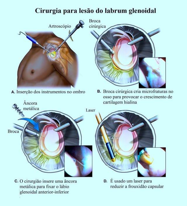 cirurgia,para,lesão,labrum,glenoidal