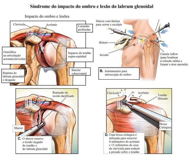 síndrome,do,impacto,do,ombro,impingement