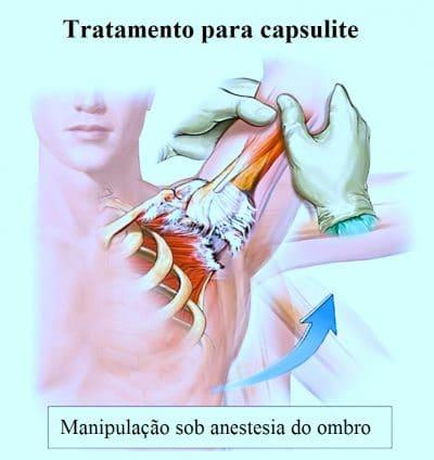 tratamento,para,capsulite,manipulacao,sob,anestesia