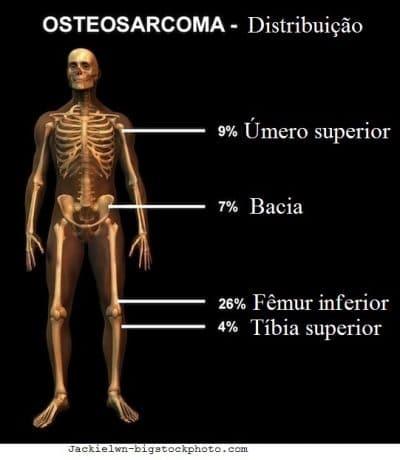 Câncer ósseo