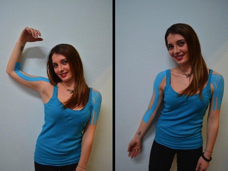 Kinesio, taping, contratura, bíceps, alongar, encurtar, rugas, dor muscular