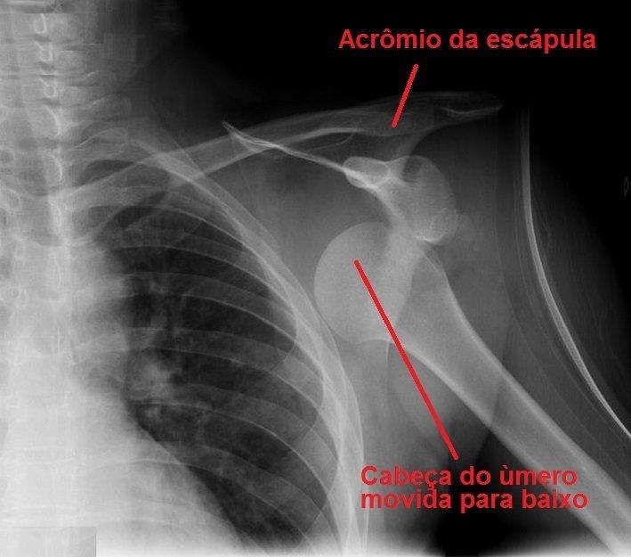 tomografia computadorizada axial, clavícula, úmero, ombro deslocado, ombro, lesão óssea, escorregando, dor, sintomas, causas, limitação funcional, inflamação, idoso, bicicleta, moto, stress, perda, trauma, em casa, inchaço, edema.