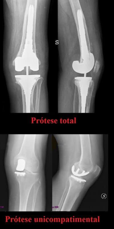 Prótese do joelho