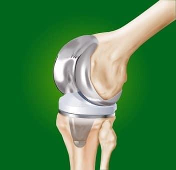 prótese de joelho, cirurgia, substituição da articulação