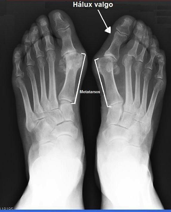 dedão do pé, hálux valgo, pé, radiografia, dor, saltos