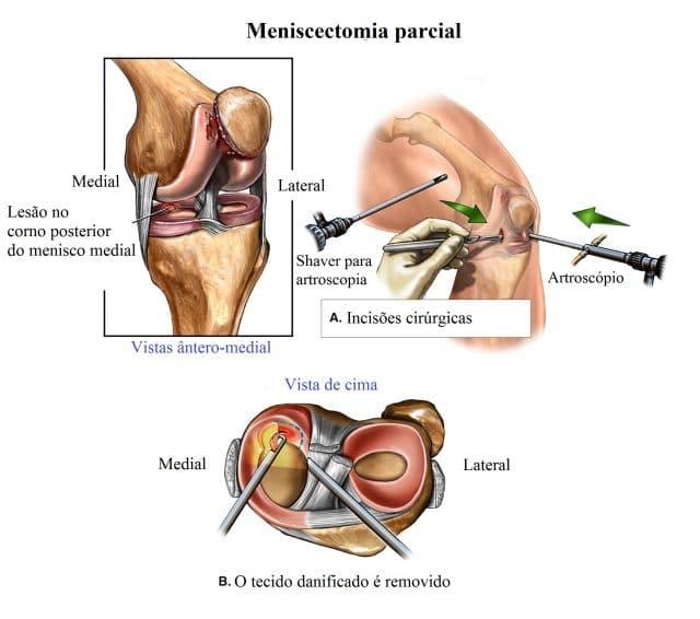 artroscopia,joelho,meniscectomia