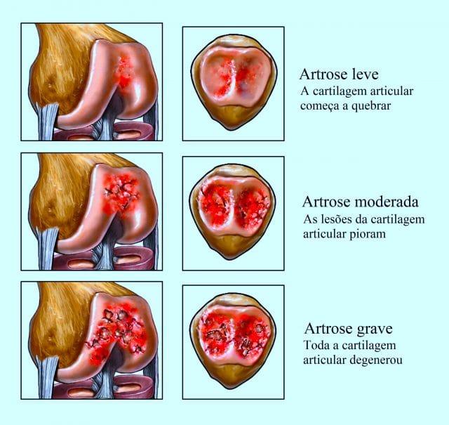 artrose,do,joelho