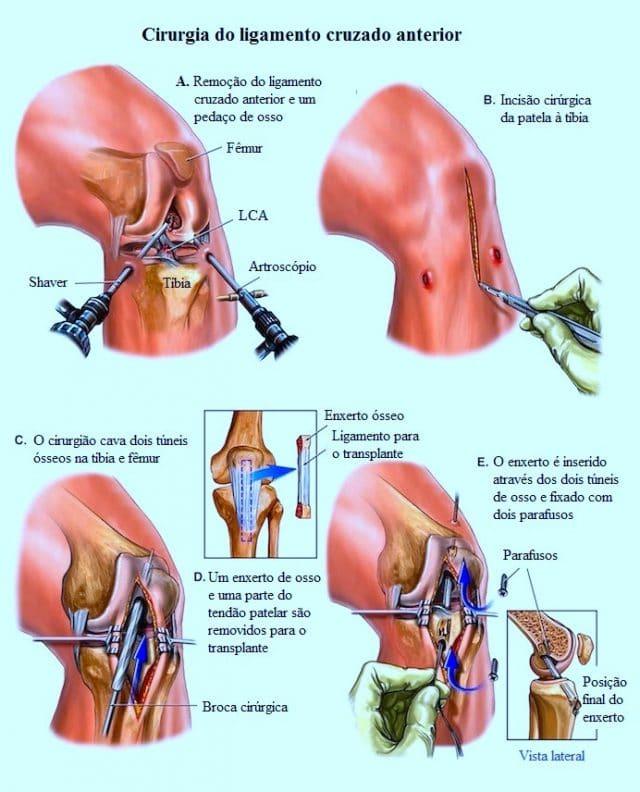 cirurgia,de,ligamento,cruzado,anterior