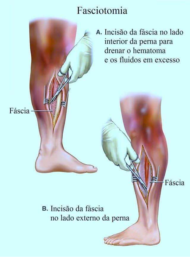 fasciotomia,síndrome,compartimental,intervenção
