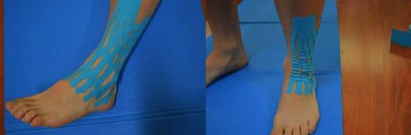 kinesio-caviglia