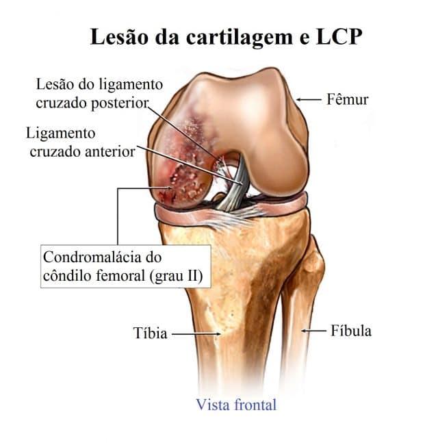 lesão,cruzado,posterior