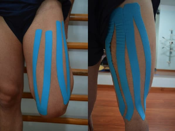 taping-combinato-quadricipite