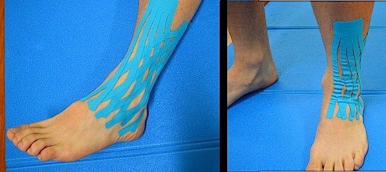 Tapng,kinesio,inchados, tornozelo, pés