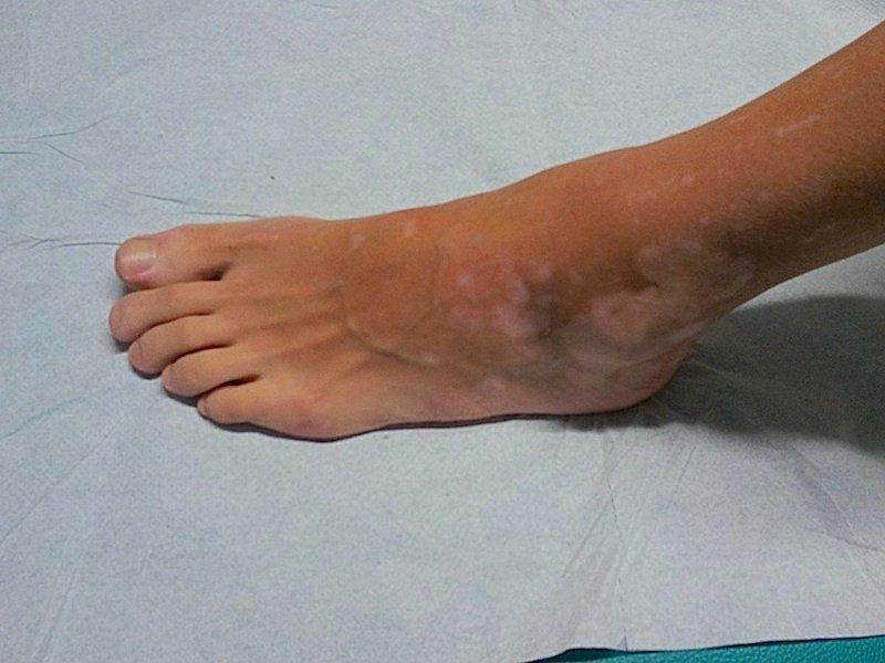 Como tratar um fungo do pé de pernas.