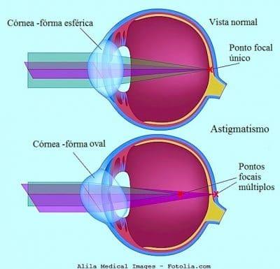 Astigmatismo nos olhos