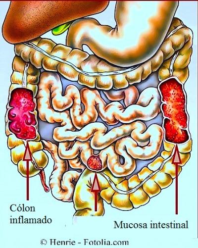Cólon inflamado - causas sintomas e remédios