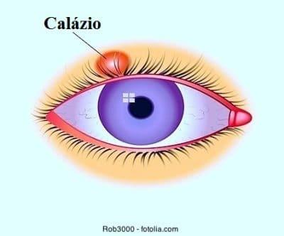 Calázio nos olhos