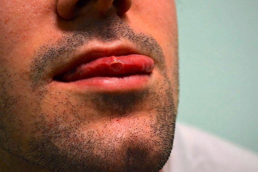 aftas na boca, lábios, língua, boca