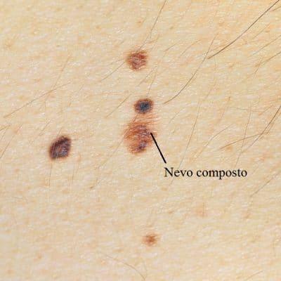 Nevo melanocítico