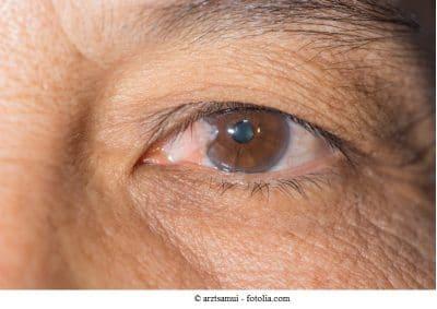 Pterigio,olho,olhos